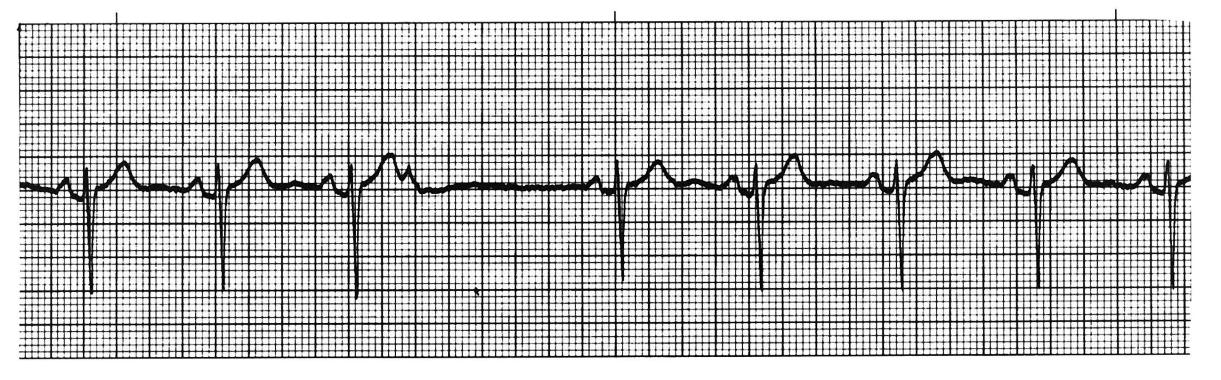 how to stop premature atrial contractions