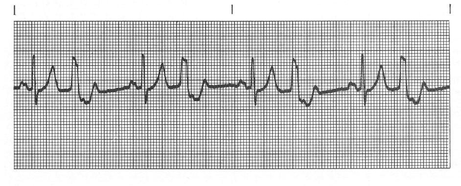 Ventricular Bigeminy Rhythm Ventricular Rhythms